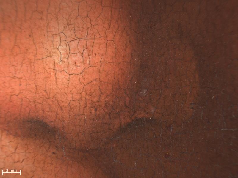 18. Detail nose