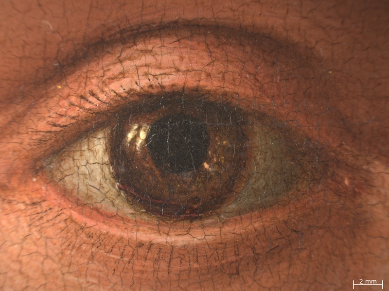 20. Detail right eye