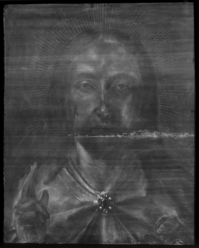 6. X-radiograph